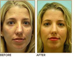reconstruction Facial trauma