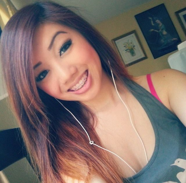 Asian teen with braces