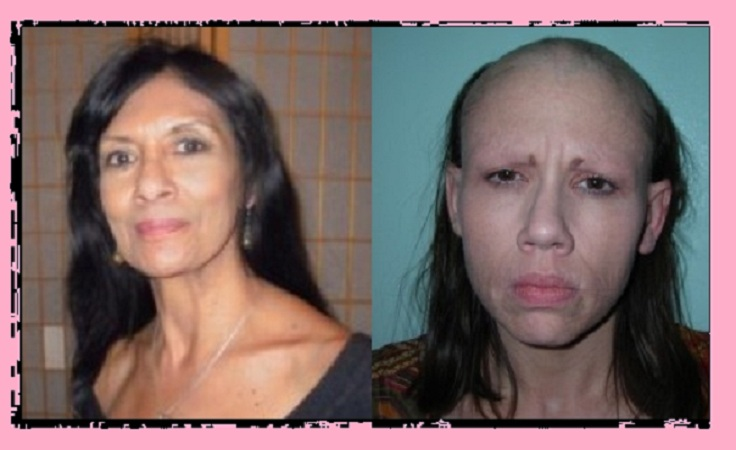 Jael strauss before and after