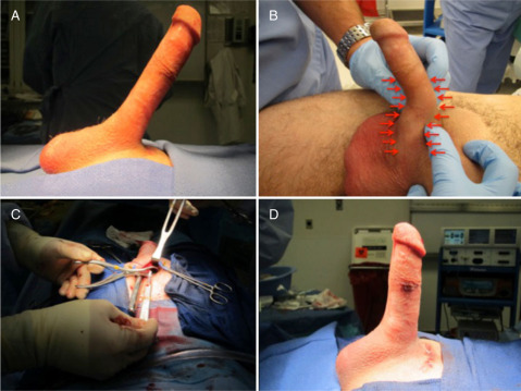 Penis after penile implant