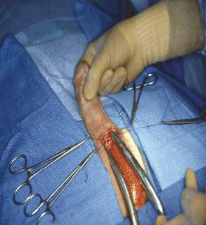 penis implant Male