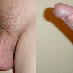 Flaccid erect penis