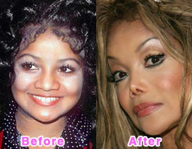Bad plastic surgery
