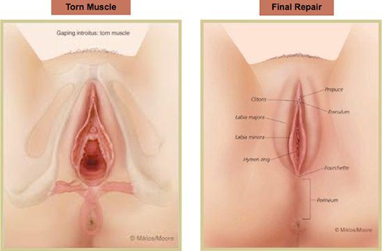 Girls with saggy vagina